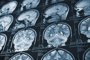 CT scan healthtech startup